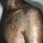 sclereux.jpg