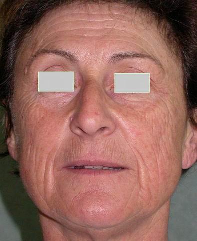 Vitiligo le blanchiment de la peau